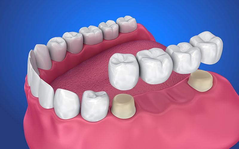 dental bridges in chestermere
