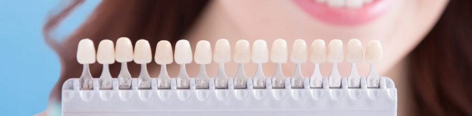 Picking the Perfectly Coloured Dental Crown