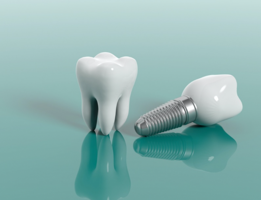 what makes someone a good candidate for dental implants