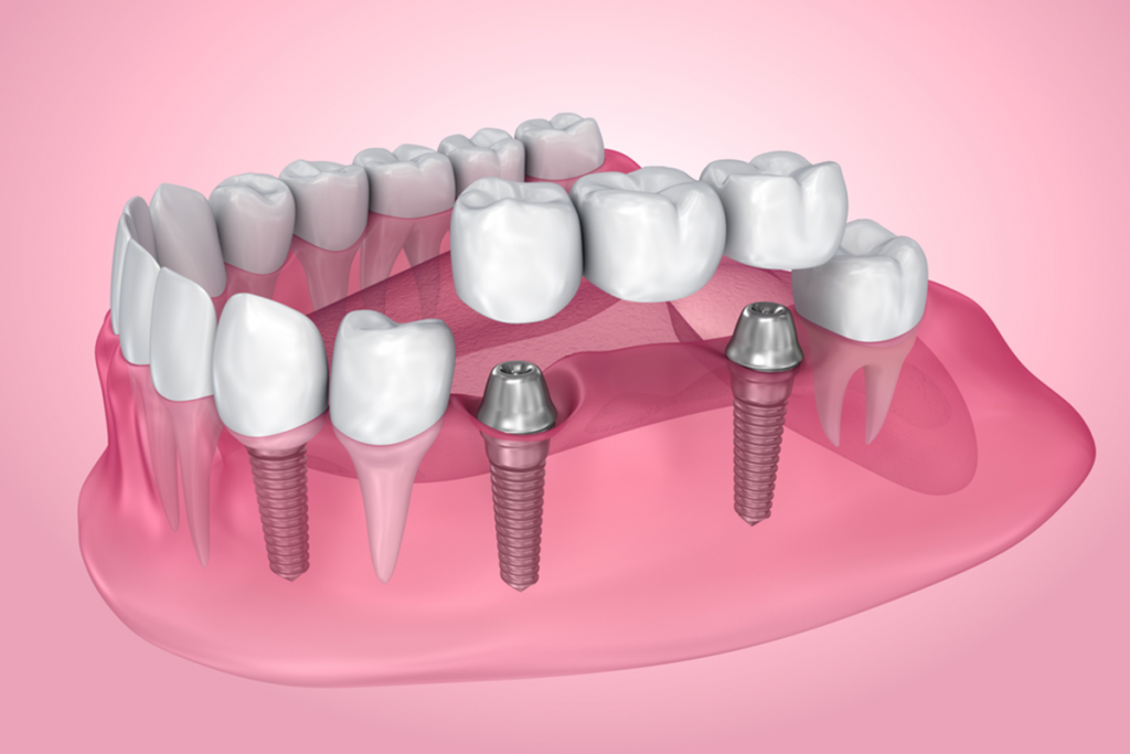 the many benefits of dental implants